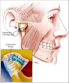 Craniofacial Disorders dentistry